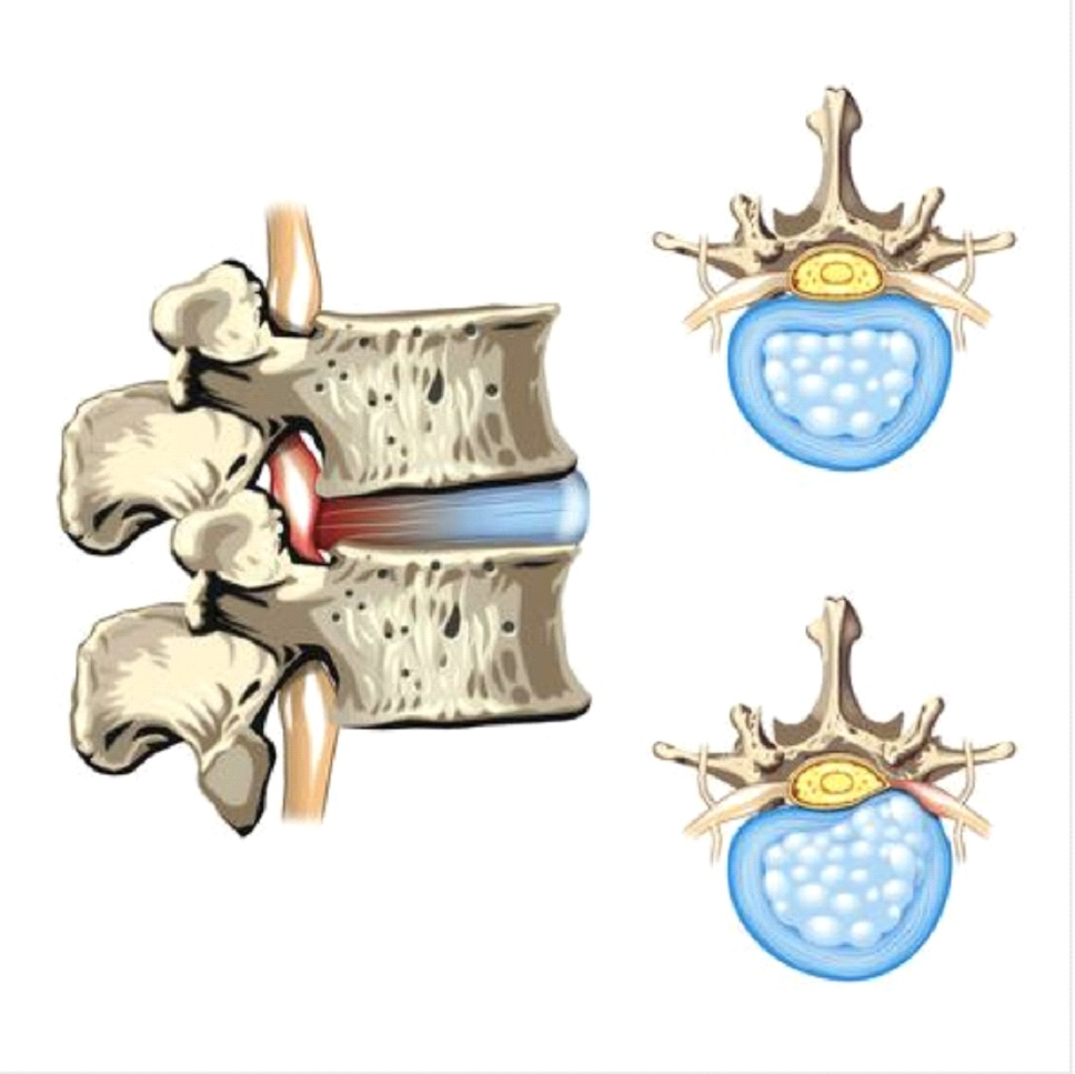 Chiropractic Treatment For Herniated Disc 2