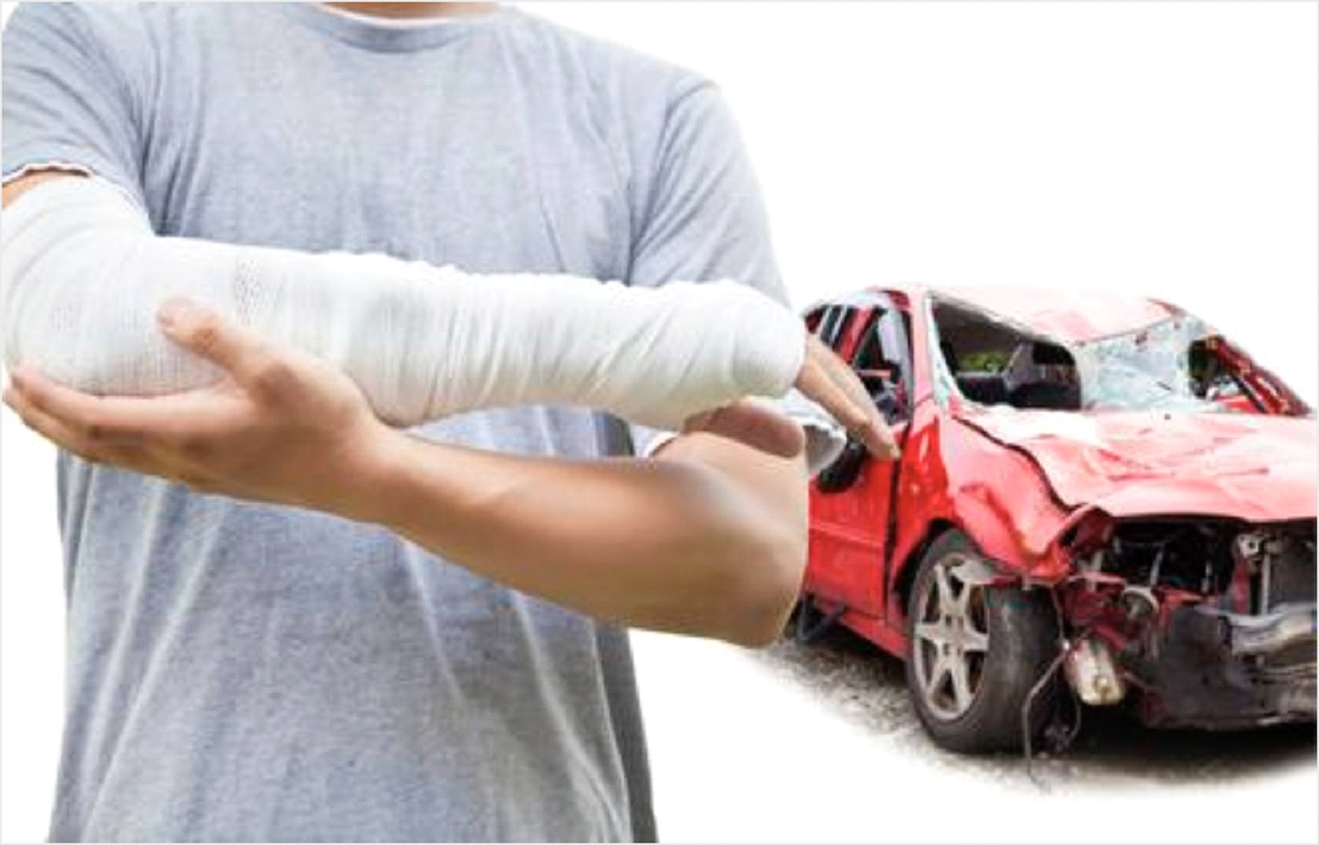 Most Common Car Accident Injuries Treated By Chiropractic 5